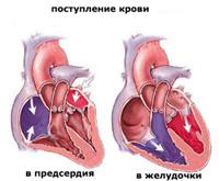 kaip hipertenziją gydyti maclyura su kokia hipertenzija suteikia grupei